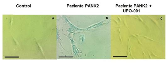 Fibroblastos control y derivados de pacientes con mutaciones en PANK2 sin tratar y tratados con UPO-001