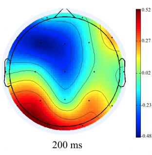 Activación occipital (área visual) a los 200 milisegundos del corte de plano