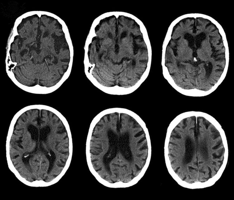 Cerebro con enfermedad de Alzheimer, tomografía computarizada